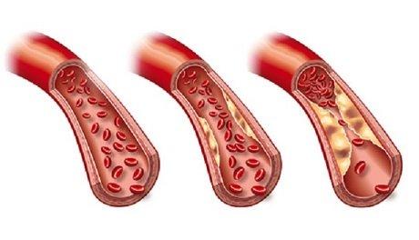 arteriosklerose fotolia 45760283 C axel kock